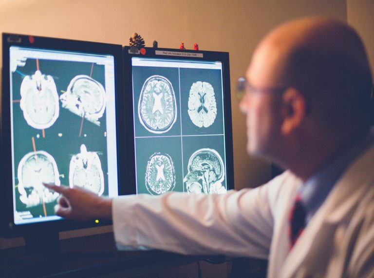 Researcher from the CDC studying brain scans of a patient diagnosed with Alzheimer's Disease and related dementias based on race and ethnicity